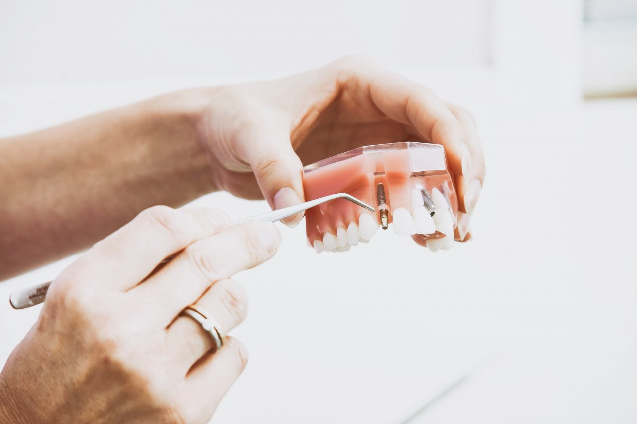 Crown vs. Implant Dental Bridges