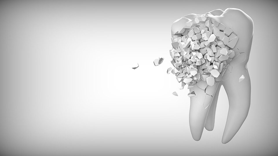 7 Things to Know Before Choosing a Cosmetic Dentist