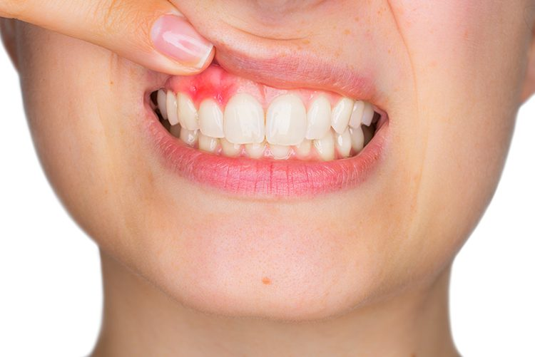 9 Causes of Tooth Decay