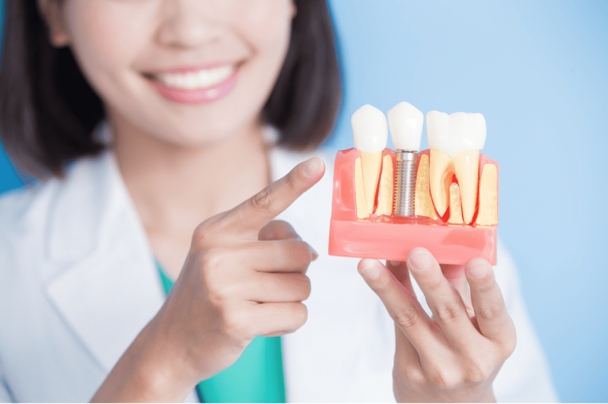 Why Don't Dental Implants Show Up on Scanners at the Airport?