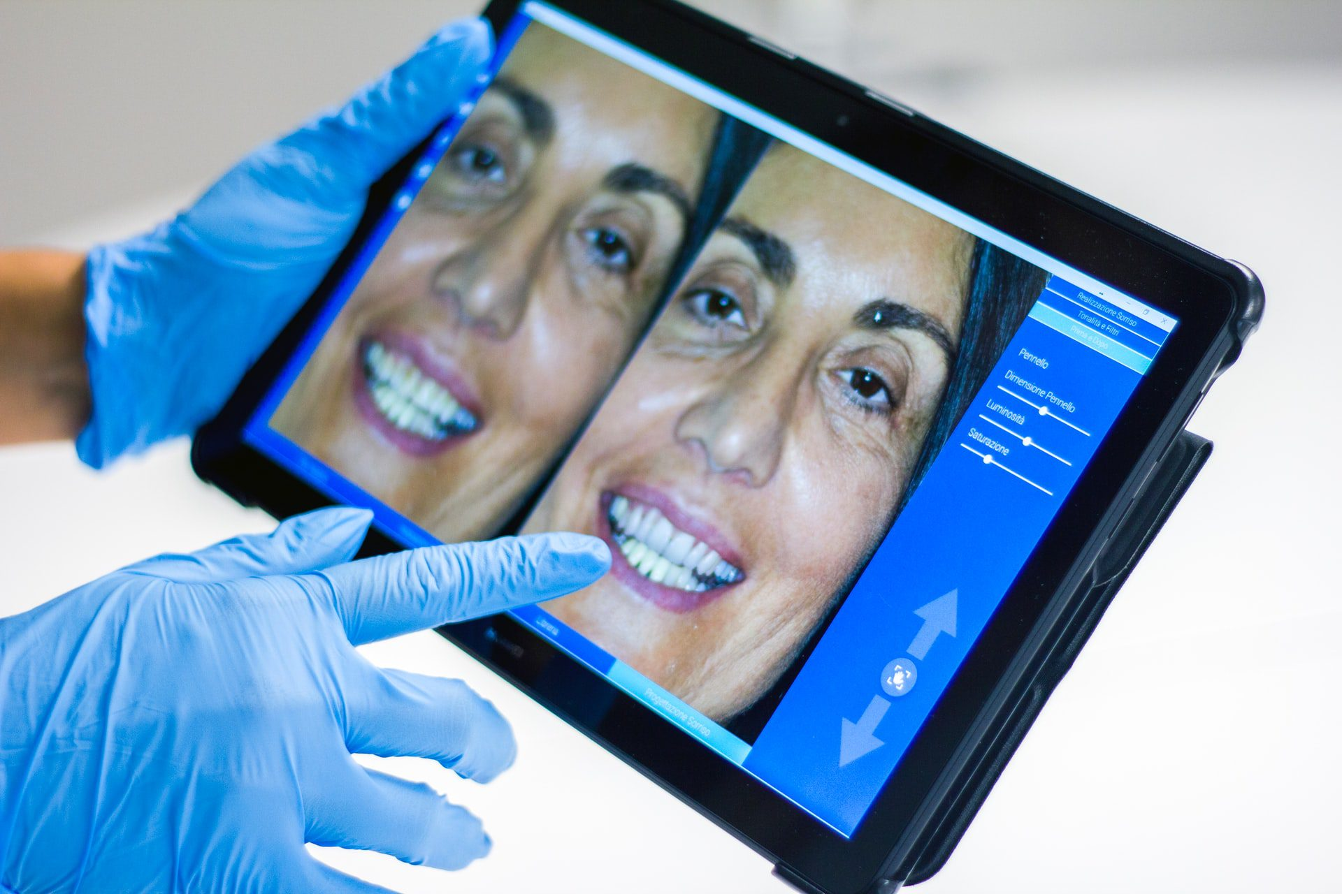 A New Tool in Aesthetic Dentistry: A Digital Smile Design