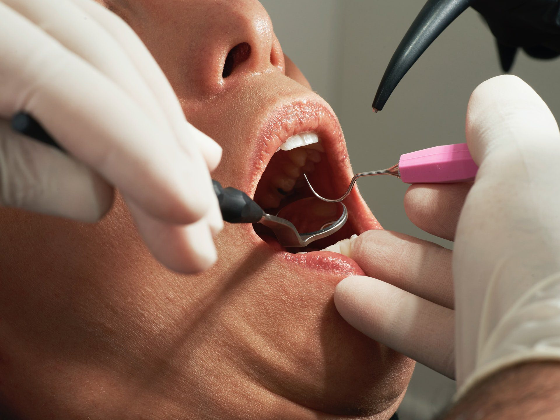 Do You Know the Difference Between a Dental Cleaning and a Dental Exam?